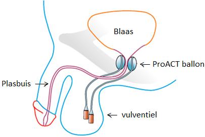 Locatie van de proact-ballonnen